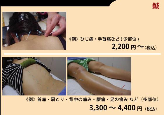 鍼灸 料金1