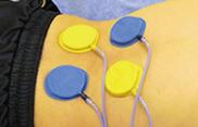 血流を良くする電気治療